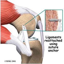 پیشگیری از آسیب زانو در ورزش
