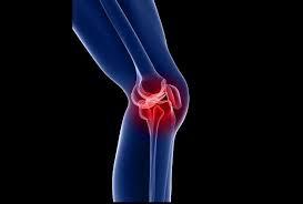 8 حرکت ورزشی برای تقویت مفصل زانو